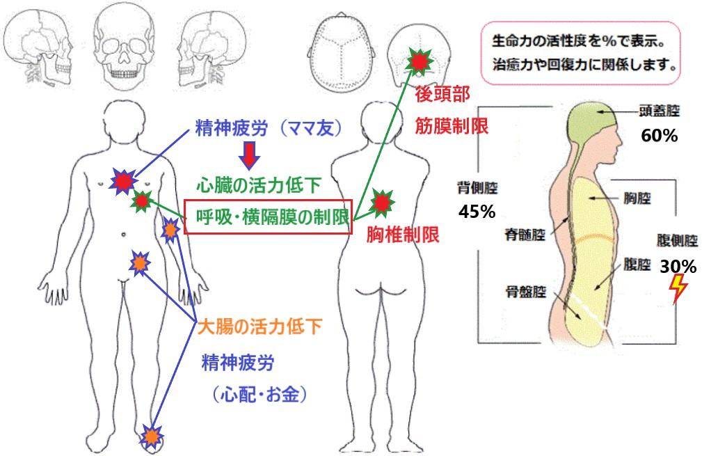 寝違えによる首の痛みのイラスト