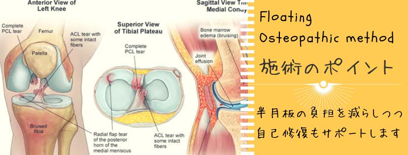 膝の痛み 半月板断裂に対するオステオパシーの整体例