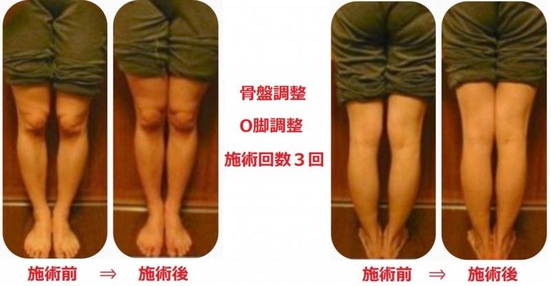 骨盤矯正・O脚・X脚矯正の症例1