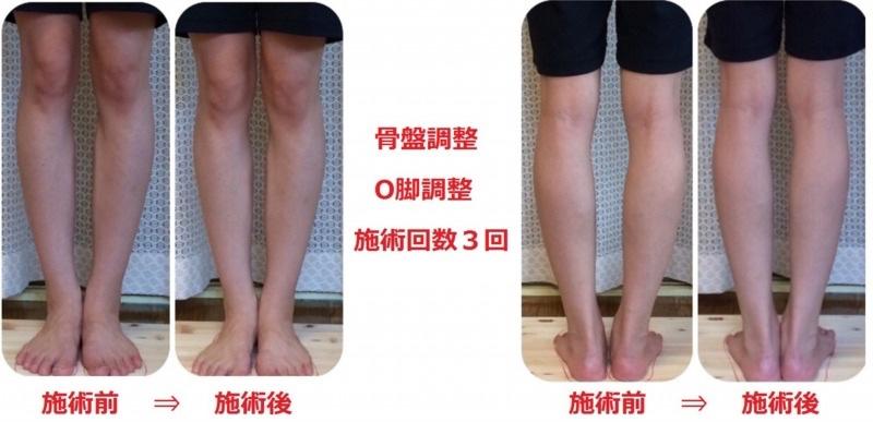 骨盤矯正・O脚・X脚の矯正例2